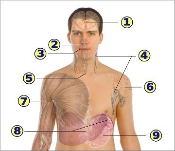 Grafické znázornění příznaků AIDS (HIV Infekce)
