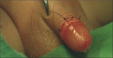 Male circumcision may be used as AIDS - HIV infection prevention (procedure photo)